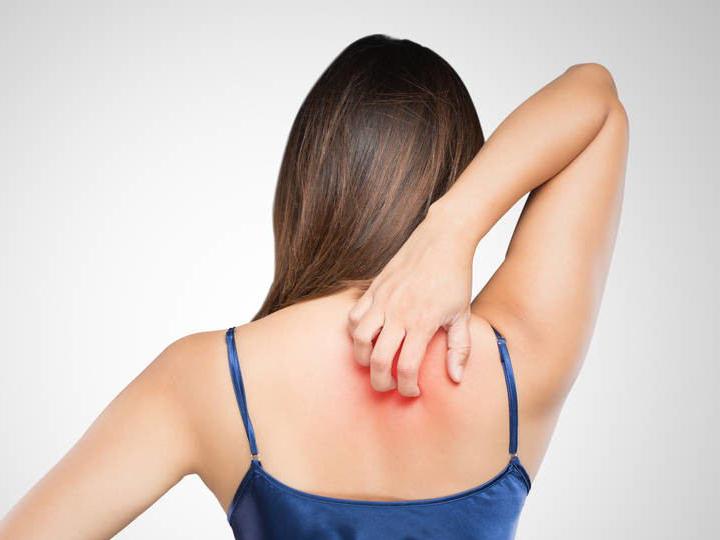 关于湿疹,你需要了解的